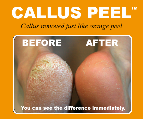 Corns and Calluses Picture Image on MedicineNet.com
